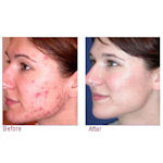 Laser acne treatment before and after